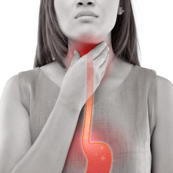 Reflusso gastroesofageo: cosa è e come migliorare la condizione