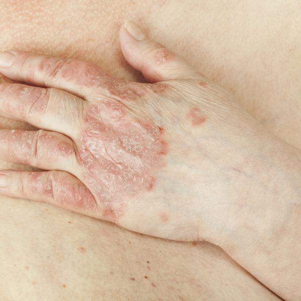 Artrite psoriasica: cos'è e come intervenire