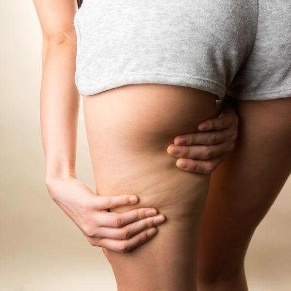Cellulite: cosa è e come combatterla?