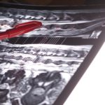 Microbioma intestinale ed insorgenza di neoplasie