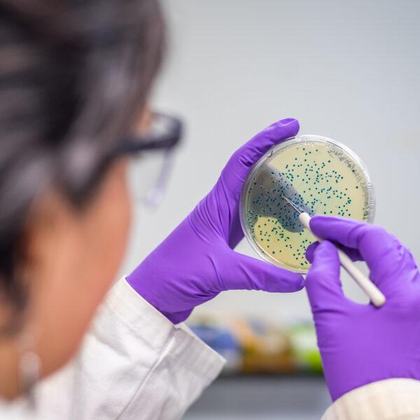 Microbioma intestinale e Covid-19: esiste una correlazione?